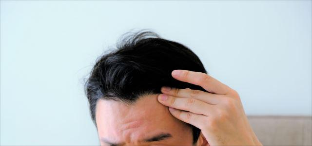 基本をチェック!agaによる薄毛は適切な治療を受けることが大切